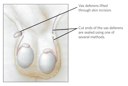 Diagram of how a vasectomy procedure is performed from Advanced Urology Associates