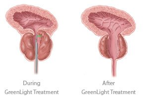 Greenlight Laser Therapy treatment before and after at Advanced Urology Associates