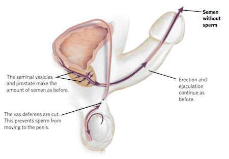Diagram showing mans reproductive organs after a vasectomy procedure from Advanced Urology Associates