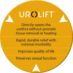Urolift - About the procedure at Advanced Urology Associates