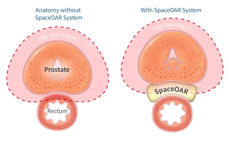 Prostate Cancer Treatment with and without Space OAR from Advanced Urology Associates
