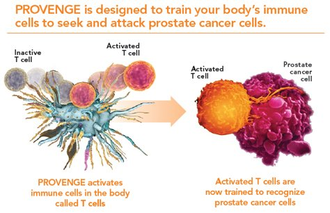 How Provenge for Advanced Cancer Treatment works from Advanced Urology Associates